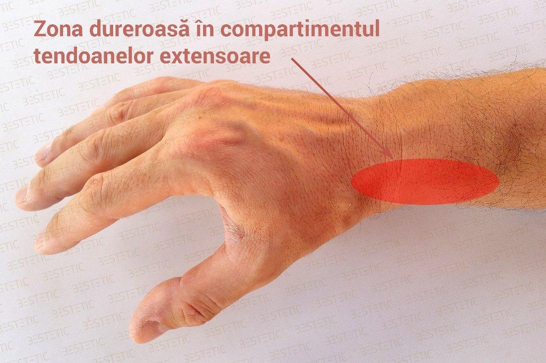 tratamentul ligamentului la încheietura mâinii