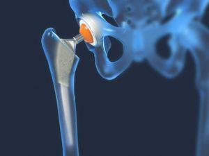 tratamentul osteosclerozei șoldului subcondral dureri articulare după sărit