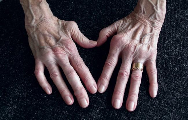 cum se curăță articulațiile genunchiului artrita reumatoidă