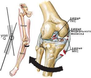 unguent pentru a consolida ligamentele articulației genunchiului dureri articulare decât degetele